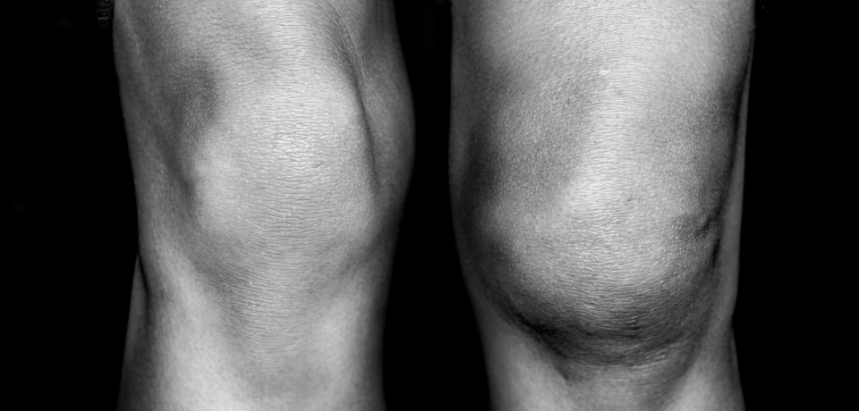 An injured knee compared with a normal one